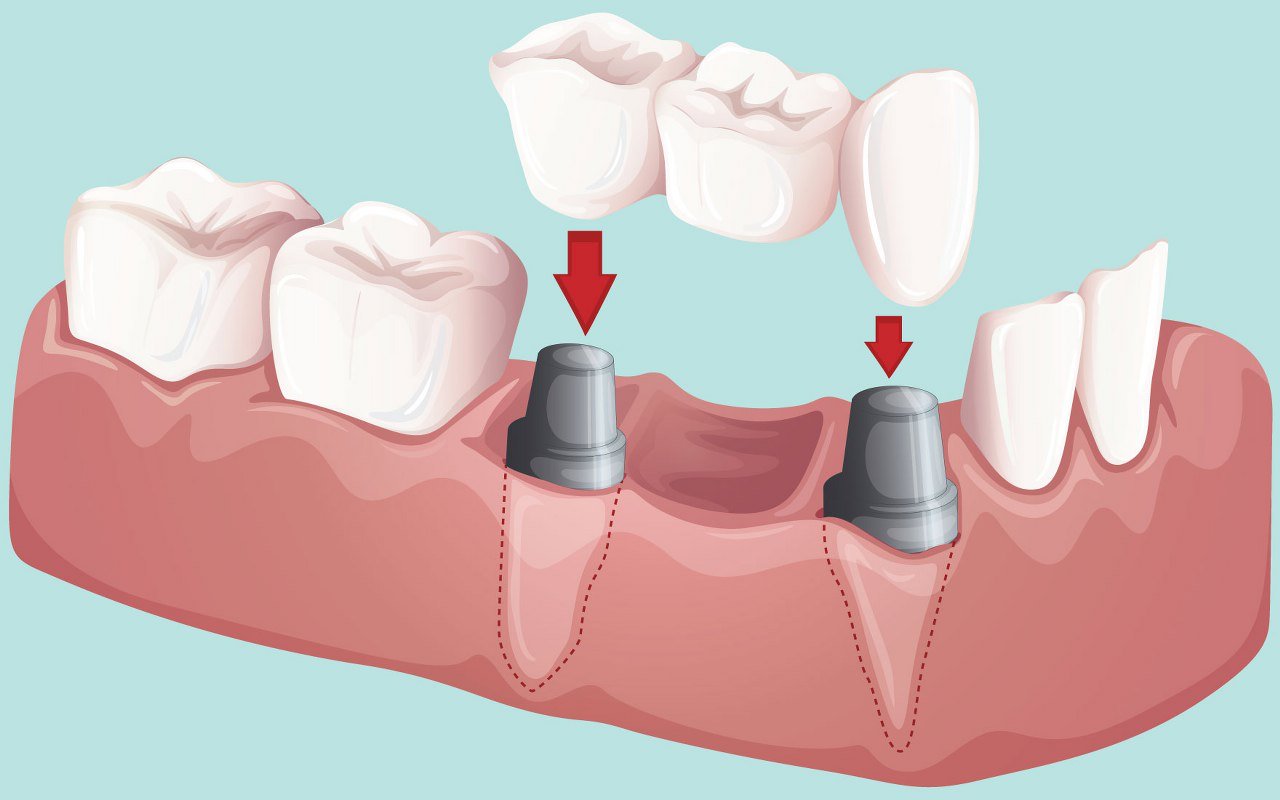 Dental Bridges Bloink Dental